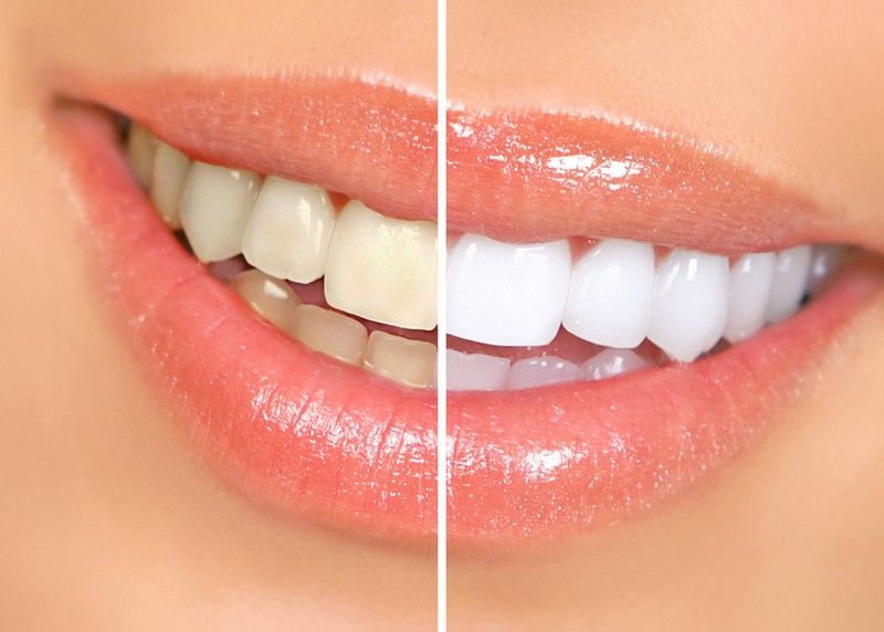Teeth Whitening  Mount Pleasant, TX